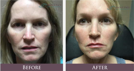 About Face Anti-Aging Institute Juvederm Voluma and Juvederm Ultra After picture Dermal Fillers Lips Cheeks and Temples Before and After picture