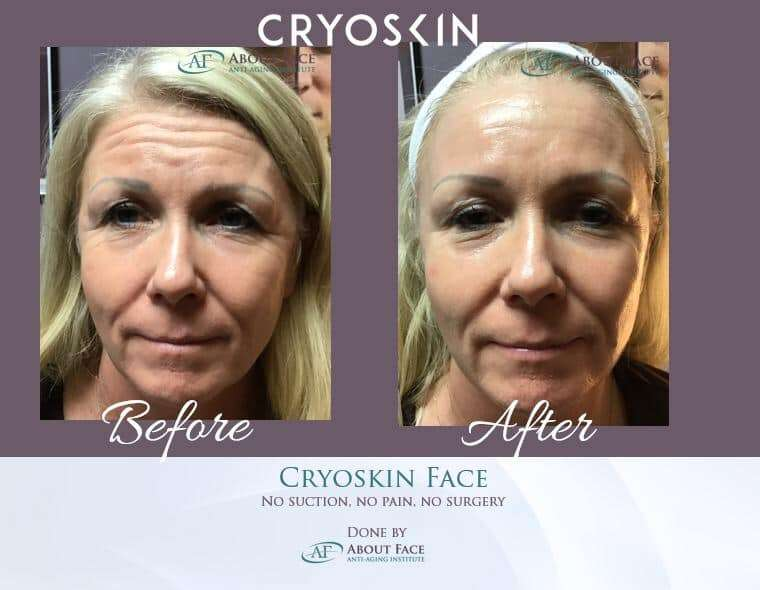 Cryoskin Treatment Central Texas