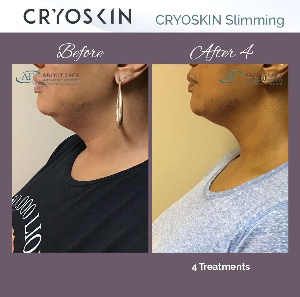 Cryoskin 3.0 – Less Fat, Tighter Skin. Same You!