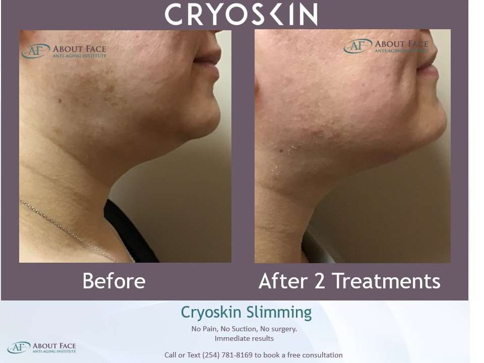 Cryoskin Facial – How It Works and What Are Its Benefits