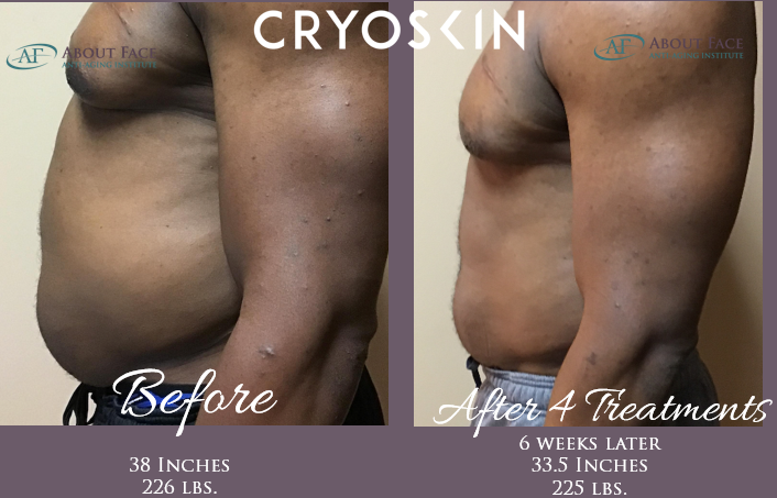 ALL YOU NEED TO KNOW ABOUT CRYOSKIN