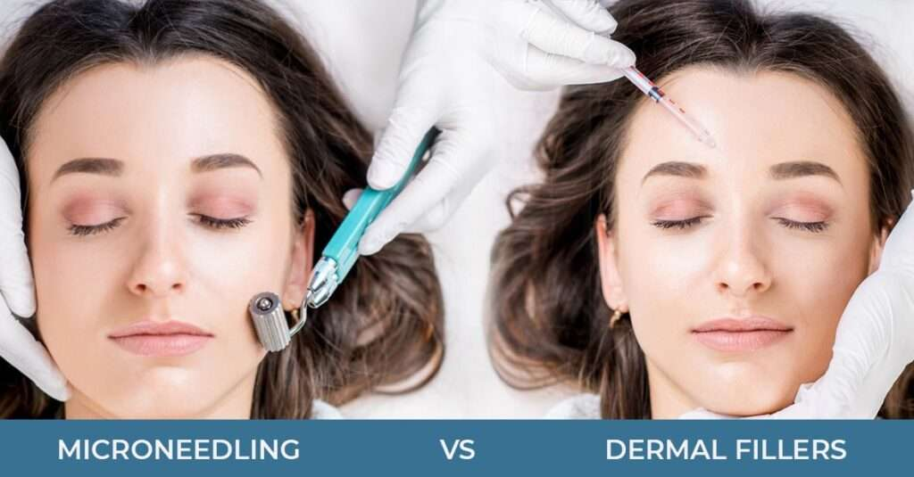 micro needling vs dermal fillers