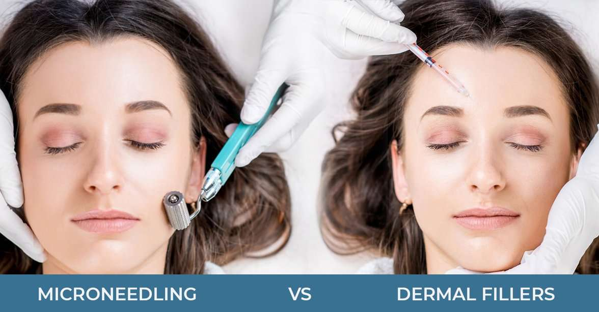 DERMAL FILLERS VS. MICRO-NEEDLING: SHOWDOWN